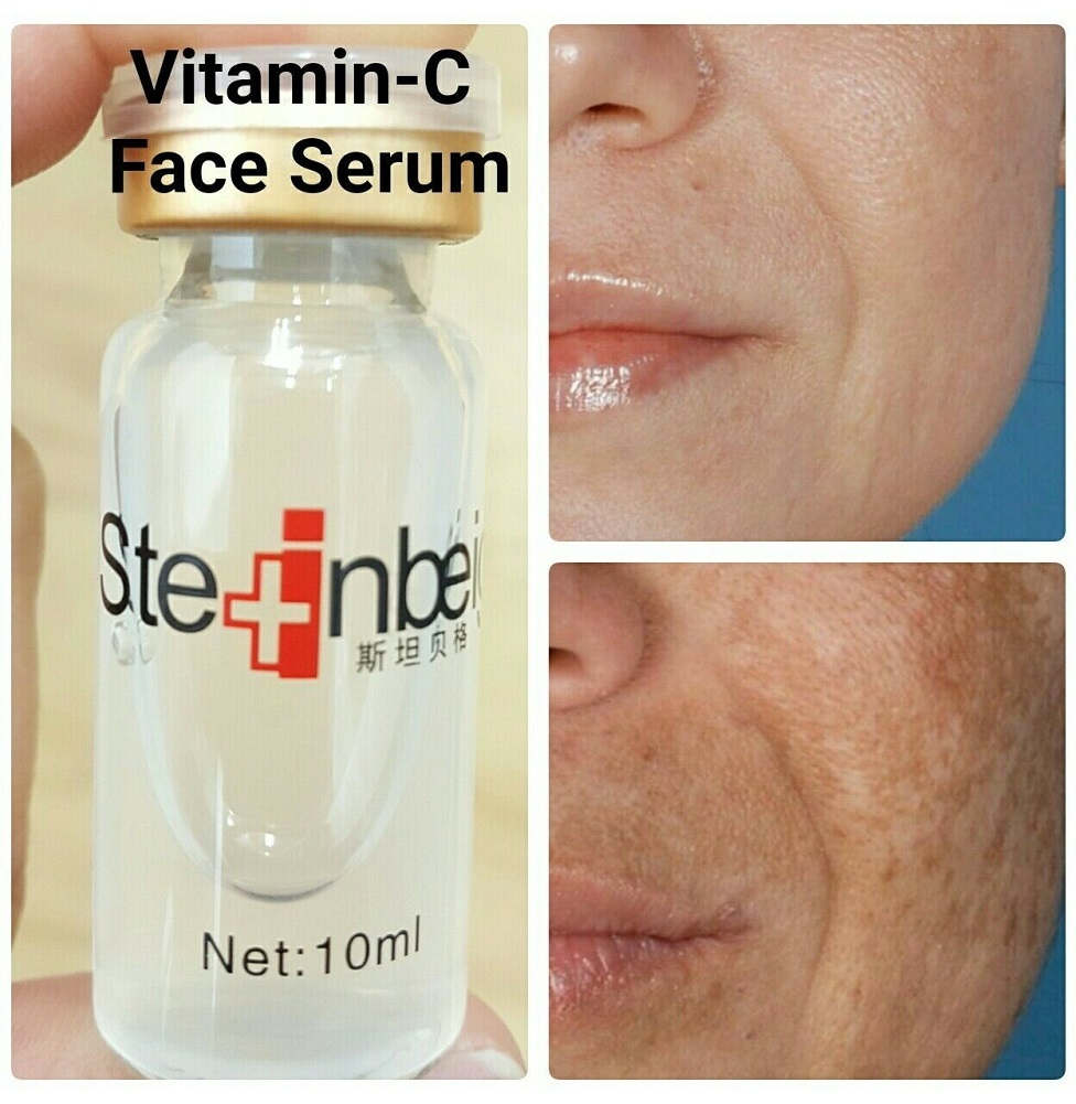 Strong anti wrinkle & skin glowing vitamin-c serum + hyaluronic acid 100%natural - $25.66