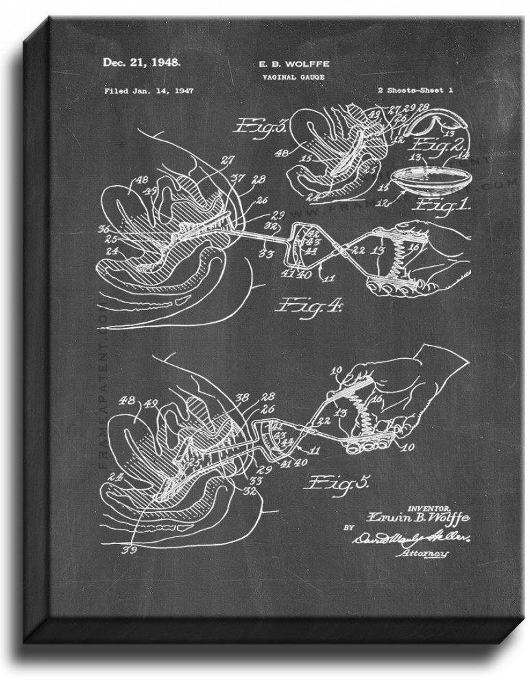 Primary image for Vaginal Gauge Patent Print Chalkboard on Canvas