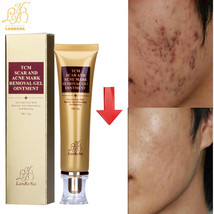Strentch Marks Skin Acne Scar Remover Acne Treatment Shrink Pores Gel Bleaching  - $17.00