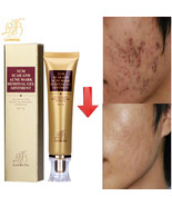 Strentch Marks Skin Acne Scar Remover Acne Treatment Shrink Pores Gel Bl... - $17.00