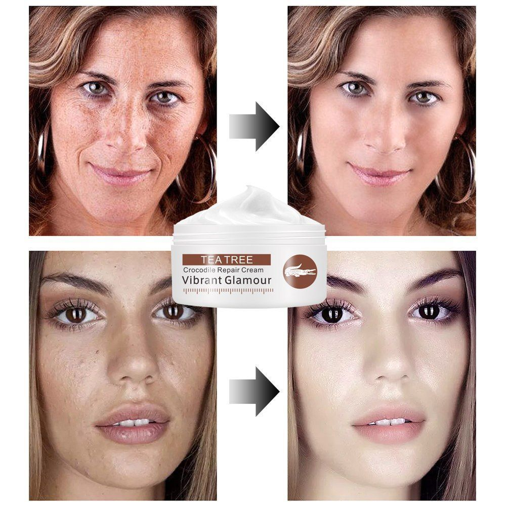 Crocodile Repair Face Cream Acne Scar Removal Whitening Spots Stretch Treatment image 3